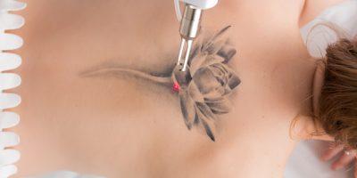 jak wygląda zabieg usunięcia tatuażu?