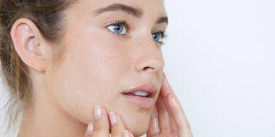 pielęgnacja skóry wrażliwej